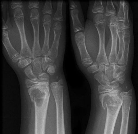 Рентгенологический снимок при исследовании лучезапястного сустава.