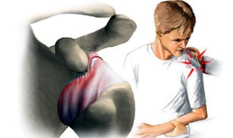 Щелчки и хруст могут возникать и в здоровом суставе