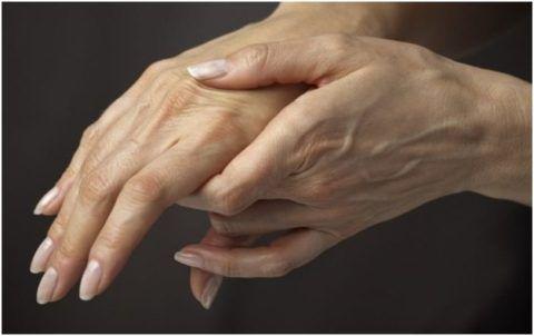 Синдром перчаток