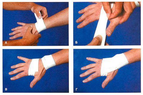 Тугая фиксация при травме суставной ткани кисти.