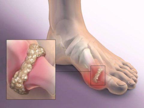 Воспалительный процесс между фалангами большого пальца левой ноги, характеризующийся болевым синдромом и тяжестью в осуществлении движений.