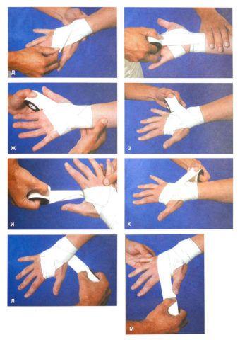 Врач показывает пошаговую технику наложения эластичного бинта при травме запястья