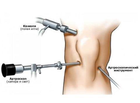 Введение физраствора полой иглой для рассоединения связок и хрящей для полного осмотра повреждения.