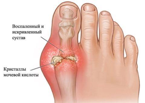 Выраженное скопление кристаллов мочевой кислоты в хрящевой ткани большого пальца правой ноги.