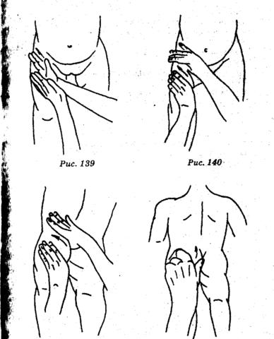 Асимметричное расположение кожных складок
