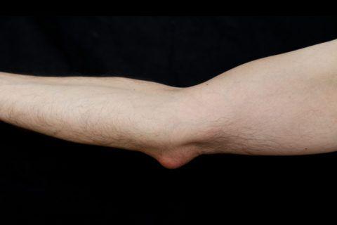 Бурсит часто диагностируется у профессиональных спортсменов