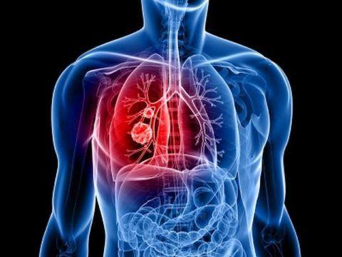 Чаще всего диагностируется TBS легких