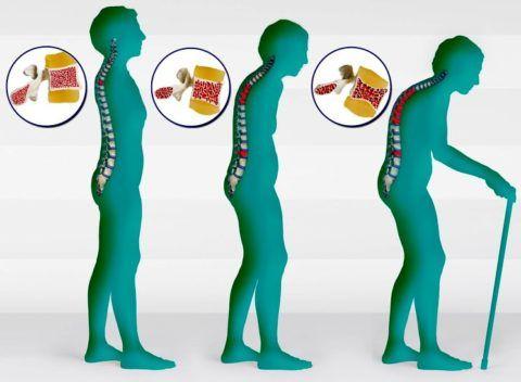 Постменопаузальный Остеопороз (ПМО): Лечение и Профилактика