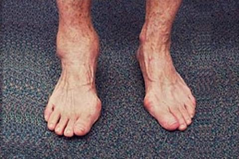 Деформация голеностопа и синовит типичны для ДОА 2 стадии