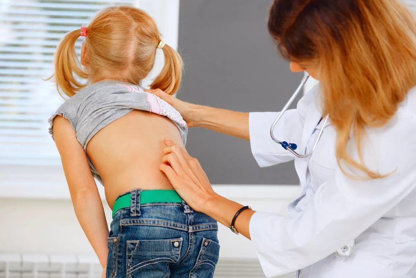 Искривление позвоночника у детей – причины и методы лечения