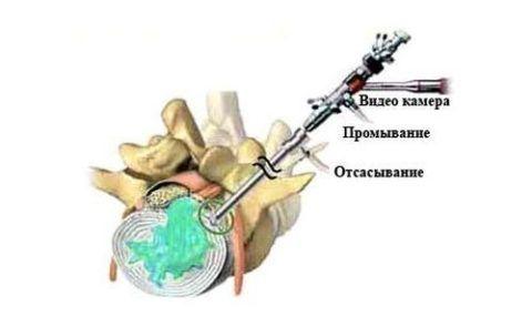 Гидропластика показана при начальных стадиях грыжевых выпячиваний позвоночника.
