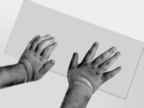 Гиперподвижность поврежденного сустава