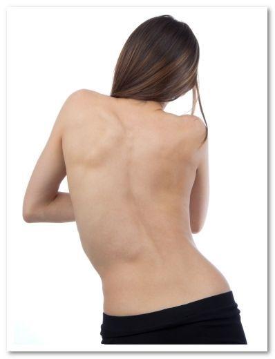 Лечение сколиоза в домашних условиях: методы выравнивания спины