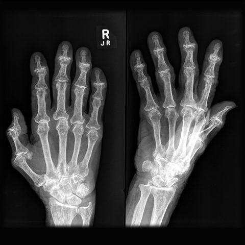 Изменения в суставах пальцев на рентгенограмме