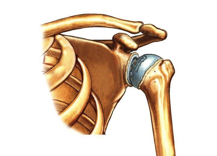 Форум лечение артрита плечевого сустава фото