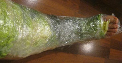 Компресс из капустного листа, применяемый на обширную поверхность ноги. Зафиксирован пищевой плёнкой для удобства в применении.
