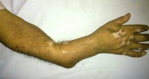 Ложный сустав также именуется псевдоартрозом