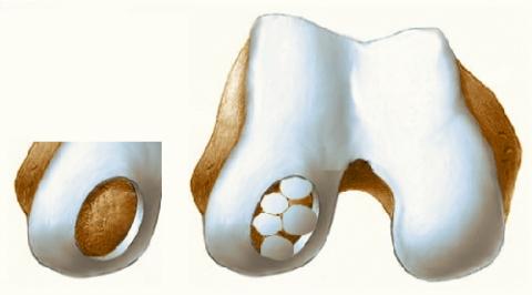 Мозаичная хондропластика при рассекающем остеохондрите