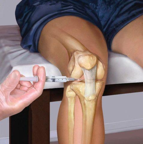 Наглядное введение лекарственного средства методом инъекции в суставную сумку. Лечение является высокоэффективным. Помогает действовать на поражённый сустав изнутри.