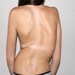 Наличие валика по выпуклой стороне — специфический симптом