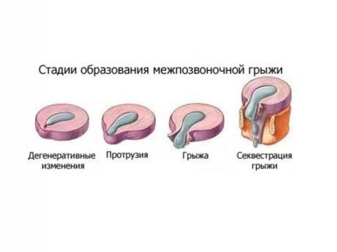Обычно образование грыжевого выпячивания позвоночного столба проходит в несколько этапов.