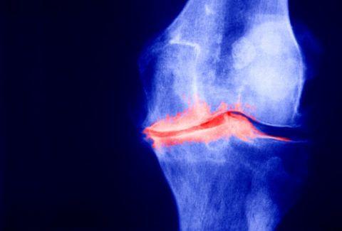 Одним из показаний к использованию этого продукта является остеоартроз