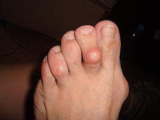 наросты на суставах пальцев ног лечение