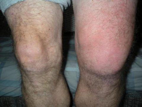 Опухло колено у пациента. Ежедневные нагрузки и подъёмы тяжести выводят хрящевую и суставную ткань из строя, вызывая ряд заболеваний.