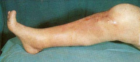 Остеомиелит сочленений – грозное заболевание, которое может привести при неправильном и несвоевременном лечении к летальному исходу.