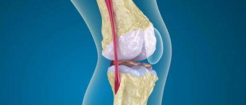 Остеопороз околосуставной – дегенеративное заболевание, поражающее костную ткань сочленений и приводящее к ее разрушению.
