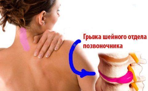 Патология в области шейного отдела часто становится причиной часто возникающих головных болей.