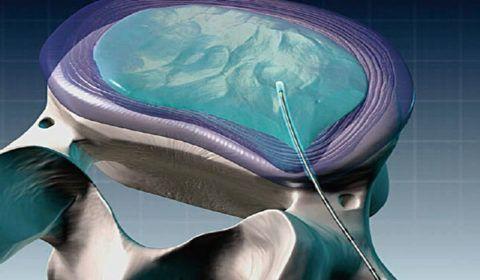 После проведения холодноплазменной нуклеопластики есть риск повтора заболевания