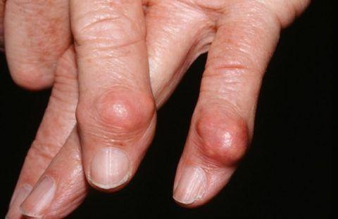 Появление шишек часто сигналит о развитии серьезной патологии