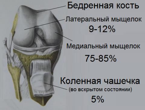 Преимущественная локализация рассекающего остеохондрита Кенига в коленном суставе