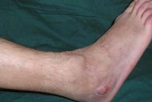 При хроническом остеомиелите симптомокомплекс недуга выражен не столь ярко.