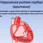 При неэффективности лечебных мер и дальнейшем прогрессировании патпроцесса может появиться аритмия, которая повлечет остановку сердца у больного.