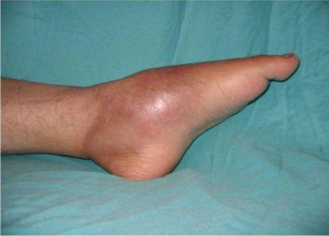 При остром развитии гнойного процесса в суставах у больного ярко выражена симптоматика: боль, отек, покраснение в области поражения.