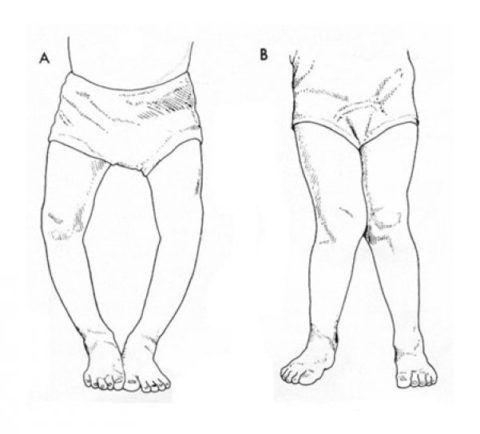 Проявление нехватки витамина Д у ребёнка двух лет. Деформация нижних конечностей.