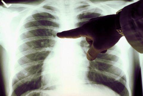Рентген-исследование в 2 проекциях