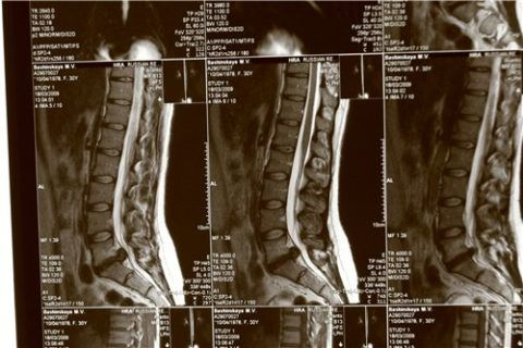 Самым безопасным методом исследования является магнитно-резонансная томография