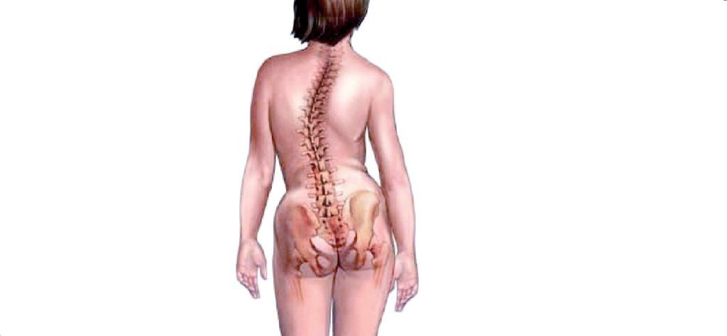 При ходьбе болит спина сколиоз