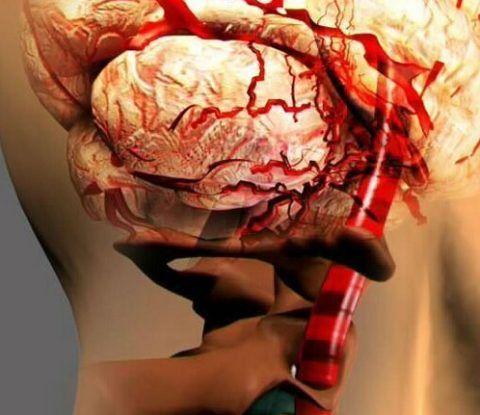 Смещение артерии, сдавление ее опухолями, рубцами