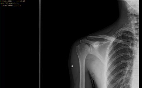 Снимок бурсита плеча