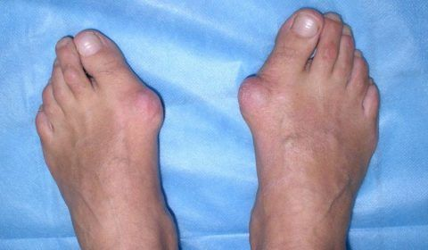 Специфические шишки часто являются следствием ношения неправильной обуви