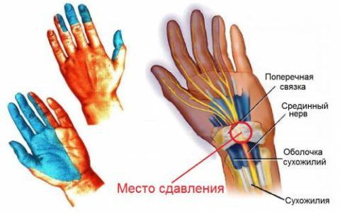 Туннельная нейропатия запястья – одна из частых причин болей в кисти рук по утрам