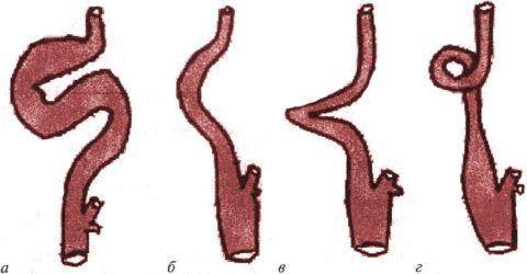 Варианты патологического извития ПА