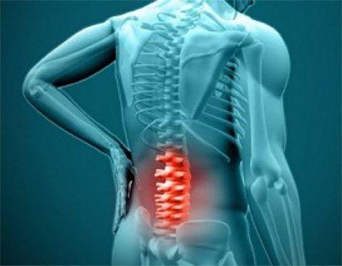 Воспаление корешков спинномозговых нервов