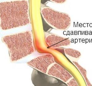 Врожденные аномалии развития + дисплазия aa. vertebralis (нетипичное расположение)