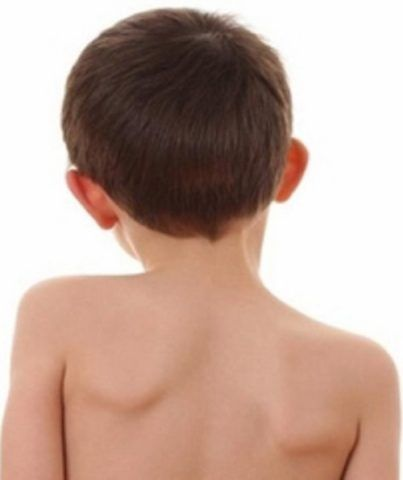 Выраженная патология шейного отдела