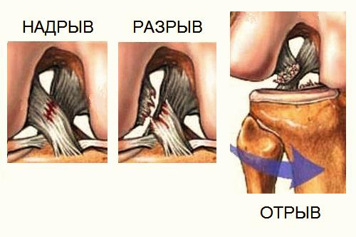Травмы передней крестообразной связки